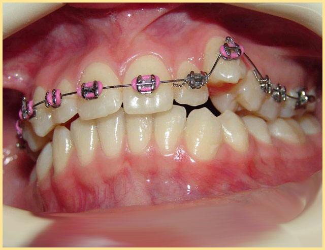 Нарушения в росте зубов и шина