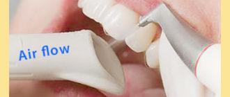 Очищение зубов аппаратом air flow