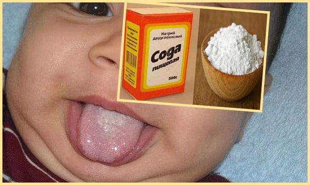 МАлыш до года с молочницей на языке и сода