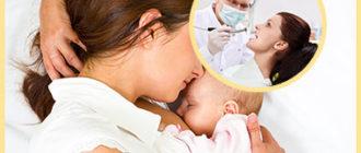 Грудное кормление ребенка и лечение зубов