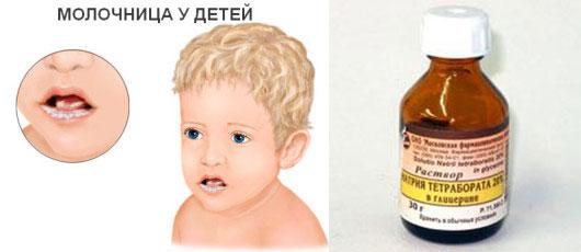 Молочница у детей и раствор натрия тетрабората