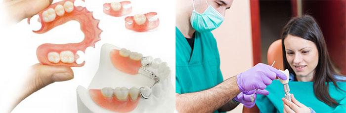 Зубные протезы и имплантация зуба
