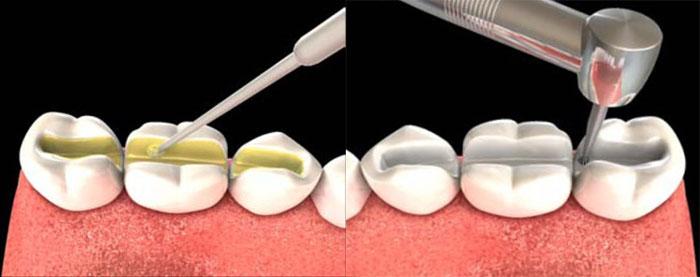Установка шин на зубы