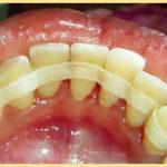 Зубная шина