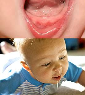 Рост зубика у ребенкаа и слюноотделение