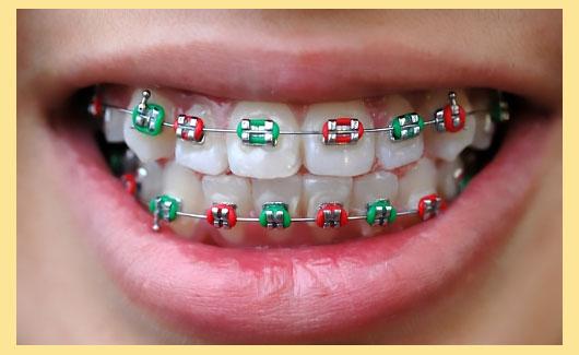 разноцветные брекеты на зубах
