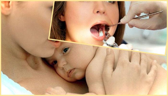 Мама с грудничком и удаление зуба