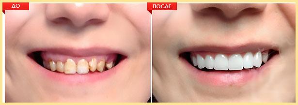 Зубы и улыбка до и после установки виниры