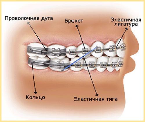 Состав брекетов: кольцо, проволочная дуга, брекет, эластичная дуга