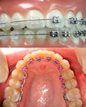 Брекеты на зубах внутрии снаружи