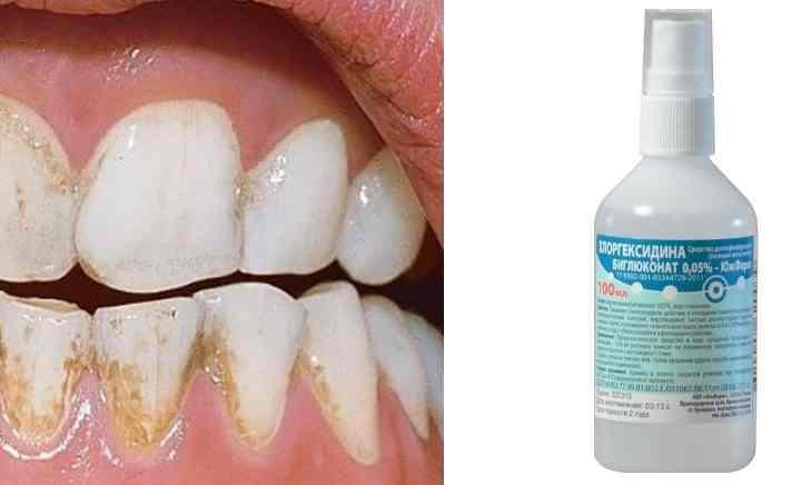обмакиваем стерильную тканевую салфеточку в неё и без нажима протираем зубки. Вместо ткани подойдёт и зубная щётка для очистки.