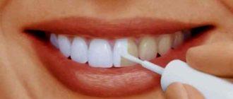 При встрече мы встречаем собеседника улыбкой и первое, что бросается в глаза – наши зубы
