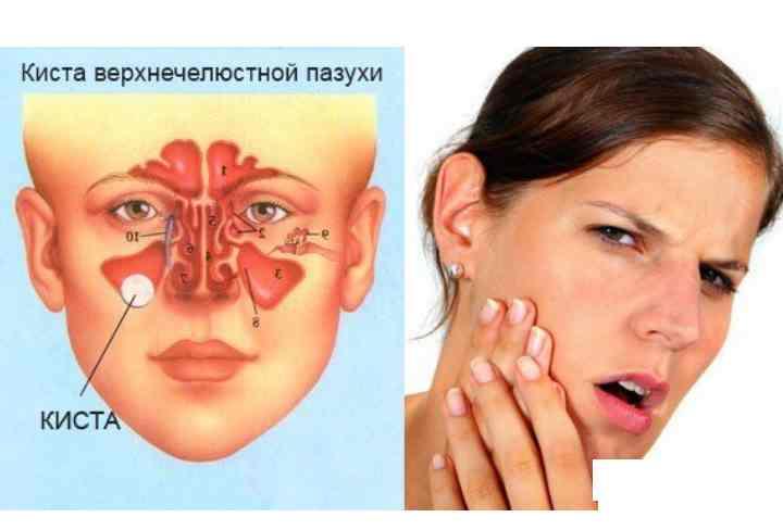 - дефекты в структурной анатомии носа;