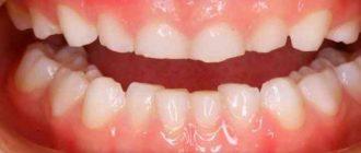 чаще стали прибегать к уколам Ботокса для расслабления мышц челюсти