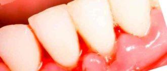 Болезнь гингивит формируется из-за безразличия к регламенту гигиены