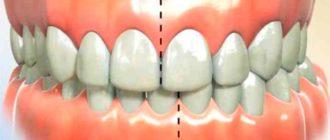 ежедневно после трапезы важно прочищать очень хорошо каждый зубик