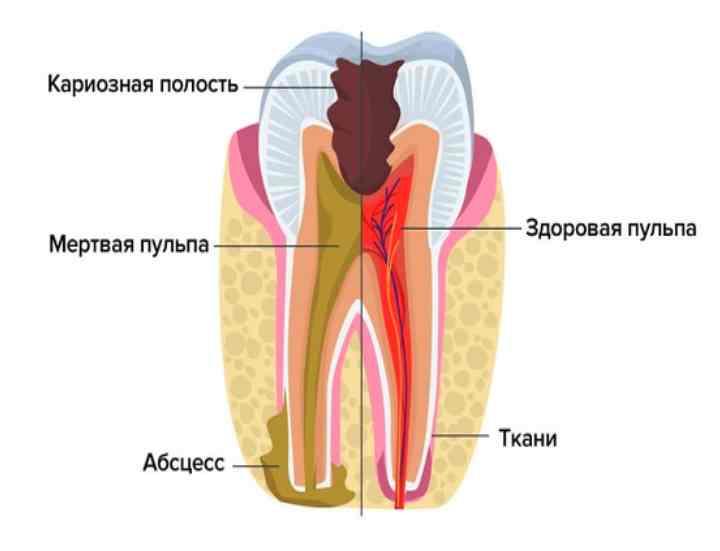 воспалительный процесс в дёснах из-за плохой гигиены