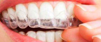 Человеческие зубки имеют послойную структуру