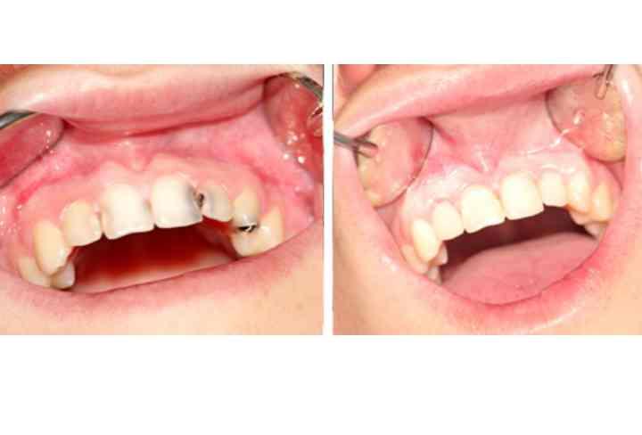 отсутствие возможности изолирования ротовой полости и зуба от влаги