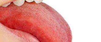 пцр – исследование слюны больного