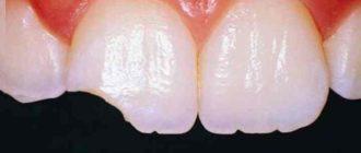 Не сведущий человек не отличит зуб с наращенной областью