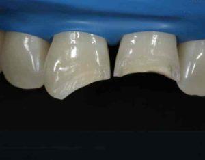 чти всегда возможно восстановление куска зуба методологией художественного реставрирования при помощи композитов