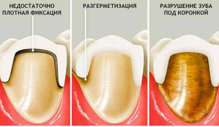 - низкое качество эндодонтической терапии;