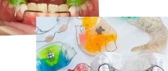 - ликвидация скарифицированных окклюзионных взаимосвязей зубов и речевых дефектов;