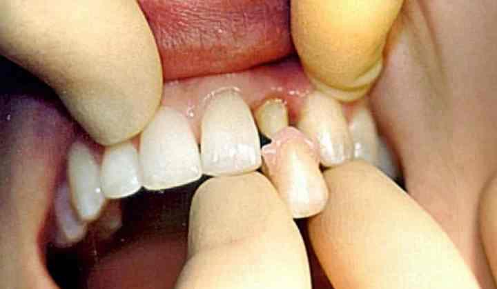 - щель промеж культей зуба и коронкой;