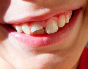 Передние зубки попадают в поле зрения и любой недочёт в их внешности – это трагедия для людей, работающих с публикой.