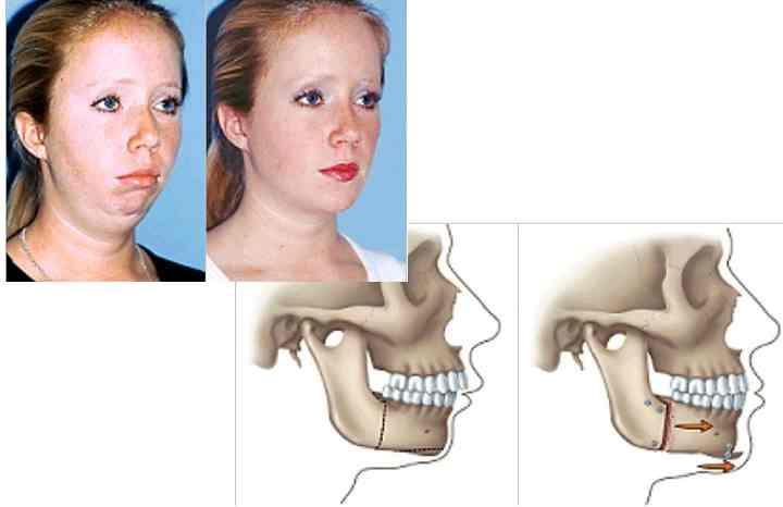 - болезненность челюстных суставов;