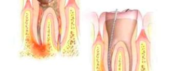 лечение кариесного зуба