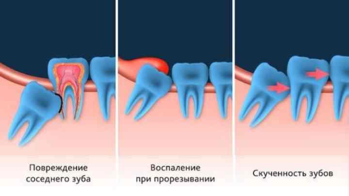 - кровоточивость дёсен, которая усиливается при чистке зубов;