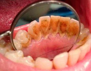 - плохая гигиена зубов или при применении излишне жёсткой щётки;