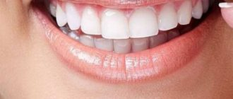 утрата зуба на нижней челюсти
