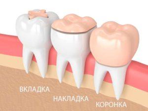 Вкладки – будут необходимы при разрушении коронки на боковых зубах