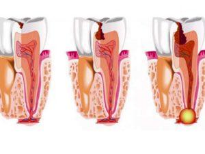 - «ЭндоЭст» - электроодонтодиагностика, электрофорез, сужение апикального отверстия ипрочие процедуры;