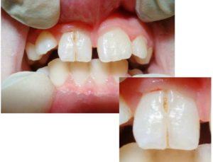 пародонтоз – обнажается шейка зуба