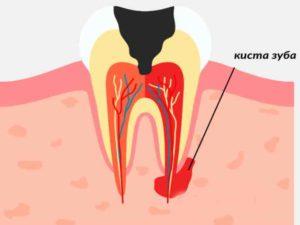 - травматизм зуба и десны – перенесённое заболевание из-за инфекции;