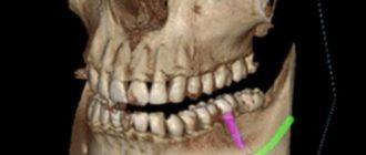 - приготовление к хирургическим вмешательствам на челюсти и имплантации;