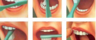 - здоровые зубы не омрачают жизнедеятельность, что нельзя сказать о поражённых;