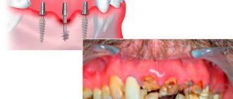 - реставрация реальна при малом объёме костной ткани из-за подбора актуальных элементов опоры;