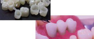 - закрытие имплантов временными изделиями из пластика;