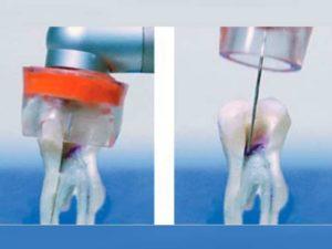 - поверхностное поражение кариозом (стадия мелового пятна);