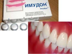 - назначение при гингивите, при катаральной и язвенной форме болезни;