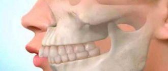 - недоразвитость нижней челюсти, верхняя - в нормальном состоянии;