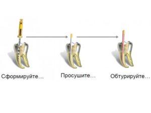- техника нуждается в тщательном осушении поверхности полости перед наполнением материалом;