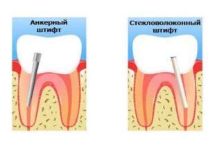 - опора – это корни зуба (здоровая его часть) – перекрывающее протезирование;