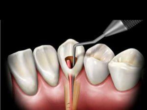 - предрасположенность корня к саморассасыванию – это касается молочных зубов;