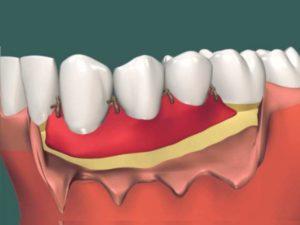 - дисбаланс в питании челюстных костей,